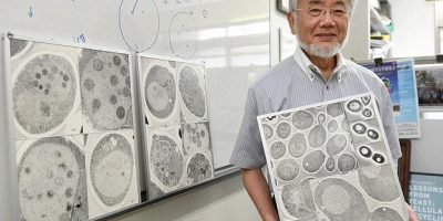 390DB58E00000578-3819275-Professor_Ohsumi_s_research_using_yeast_cells_has_helped_to_impr-a-18_1.jpg