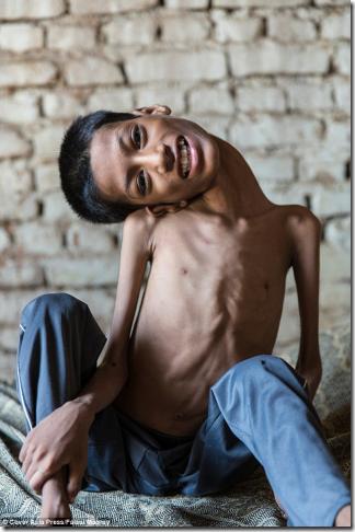「首が180度ねじ曲がってしまった少年」の過酷な運命。彼を救うため世界が動いた結果…